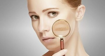 Best Tips for Treating Melasma Naturally