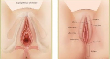 Loose Vagina: Can It Be Tighten Again?