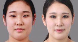 Blepharoplasty – Getting the Best Eyelid Surgery