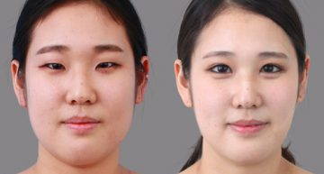 Blepharoplasty – Getting the Best Eyelid Surgery