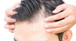 Major reasons for baldness in men and methods to deal with it