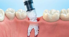 The Procedure and Precautions of Dental Implantation and Bone Grafting