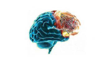 Study about Schizophrenia- A devastating brain disorder