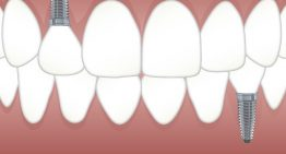 How Much Do Dental Implant Cost?