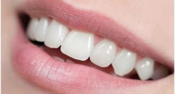 Dental Implants – What Determines Your Candidacy for the Procedure